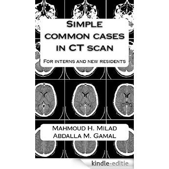 Simple common cases in CT scan: For interns and new residents (English Edition) [Kindle-editie]