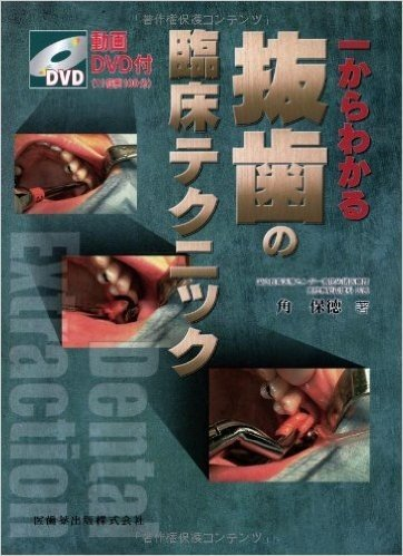 一からわかる抜歯の臨床テクニック―動画DVD付