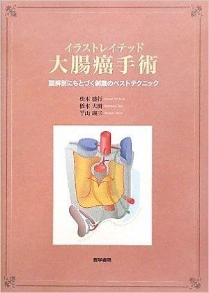 イラストレイテッド大腸癌手術―膜解剖にもとづく剥離のベストテクニック