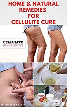 HOME & NATURAL REMEDIES FOR CELLULITE CURE: Practical Guide On The Best Remedies To Get Rid Of Your Cellulite : Everything You Need To Know (English Edition)
