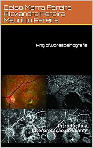 Angiofluoresceinografia: Introdução a Interpretação do Exame