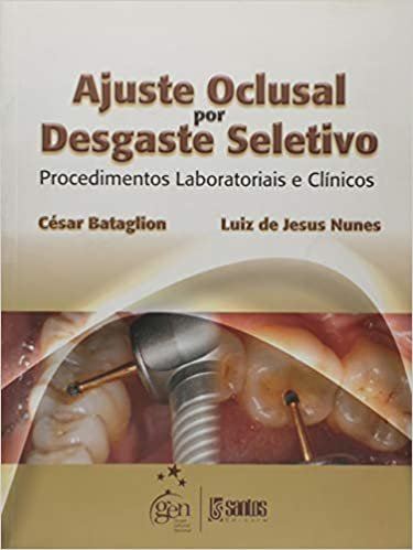 Ajuste Oclusal por Desgaste Seletivo. Procedimentos Laboratoriais e Clínicos
